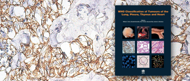 WHO Classification of tumours, volume 7