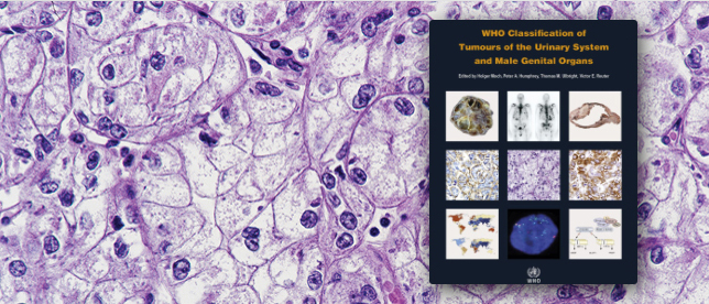 WHO Classification of tumours, volume 8