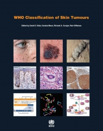 iarc publications website who classification of skin tumours